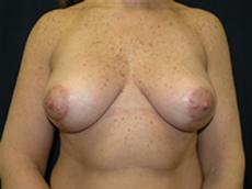 Front View After Silicone Gel Implants