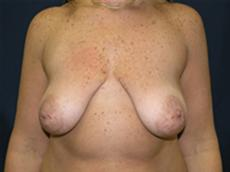 Front View Before Silicone Gel Implants