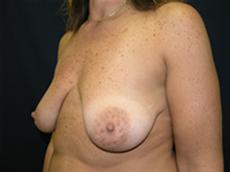 Side View Before Silicone Gel Implants