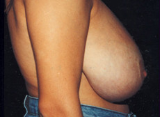 Side View Before Breast Reduction