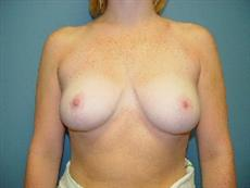 Front View After Breast Reduction