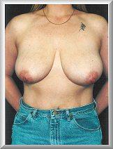 Front Before Breast Reduction