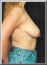 Before Breast Reduction Side View