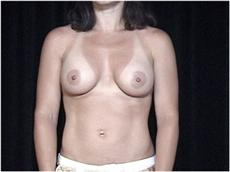 After Breast Implants Front View