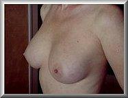 After Breast Augmentation Left Side Oblique View Surgery #2 Month 6